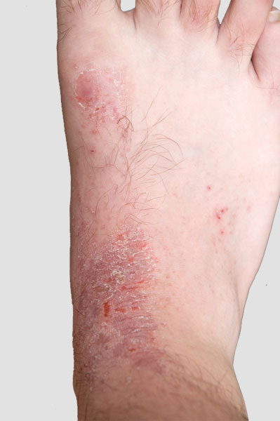 Eczema is a broad term that refers to an inflammation of the outer layer of skin-the epidermis.