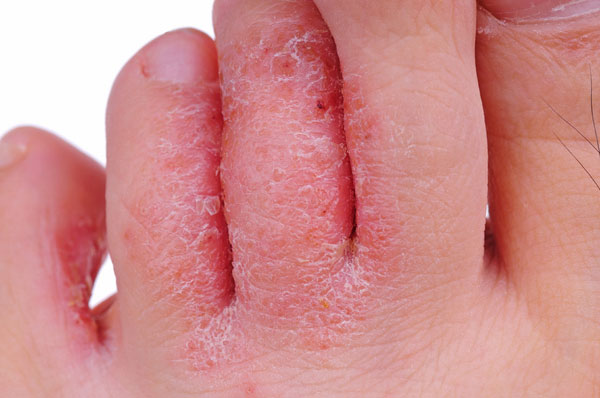 Athletes foot, jock-itch, thickened nails and white patches on the skin are all caused by fungi.
