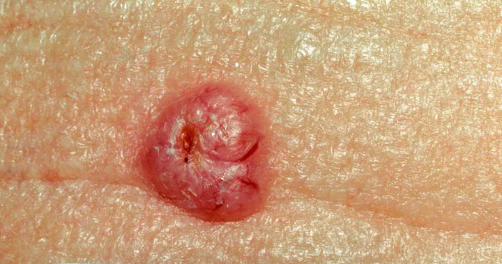 Basal Cell Carcinoma (BCC) is the most common form of malignant skin cancers, affecting as many as 30% of all Caucasians at some point in their life.