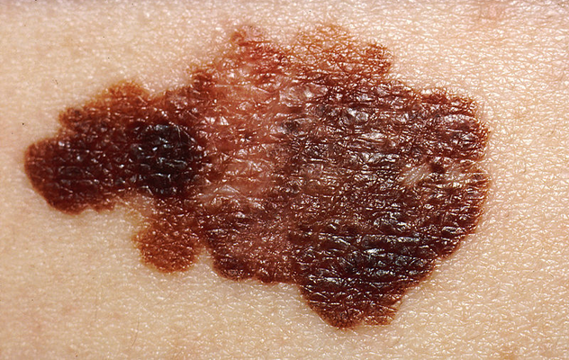 Melanoma results from the uncontrolled growth of pigment-producing cells, called melanocytes. Melanomas might appear on the skin suddenly without warning, but they also can develop within an existing mole.