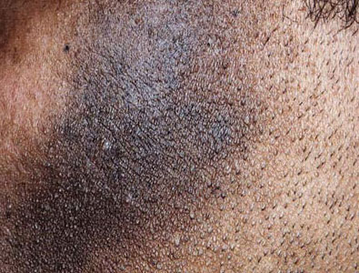 Melasma is a condition that results in darker areas of skin or hyperpigmentation.