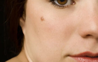 Moles result from an abnormal collection of melanocytes-the cells that produce the color pigment in the skin.