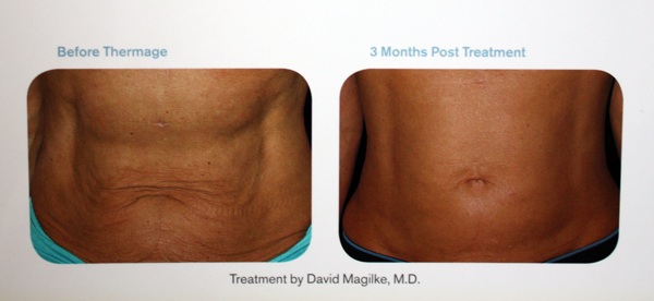 Before and after images of an abdominal thermage procedure.