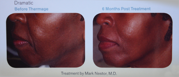 Before and after images of an facial thermage procedure.