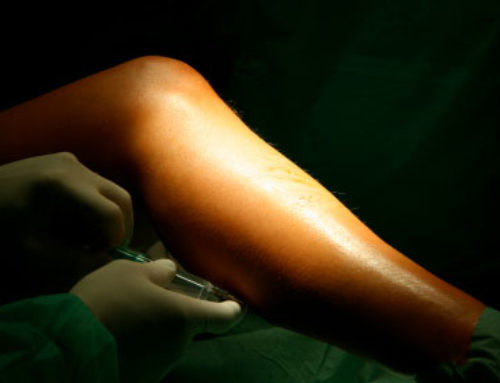 Sclerotherapy – Treatment for Unwanted Veins
