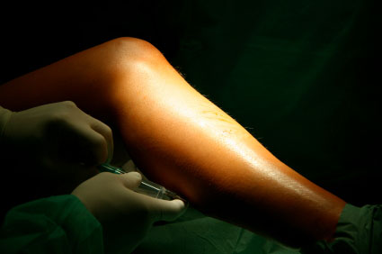 Varicose Vein repair by Island Dermatology